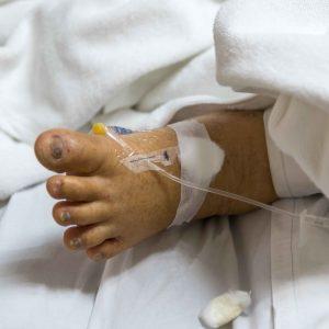 Pie de niño hospitalizado